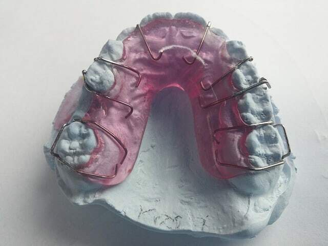 dental modeling wax in a gypsum model