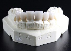 dental wax in a reconstruction model